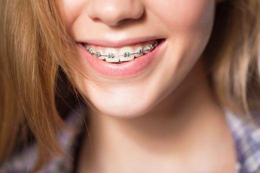 consulter un orthodontiste