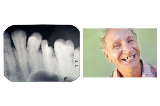 Dent cassée Homme avec une dent cassée