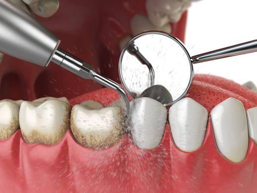 manque d'hygiène dentaire