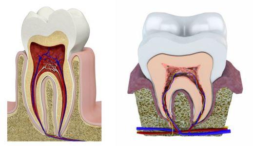 différentes parties d'une dent